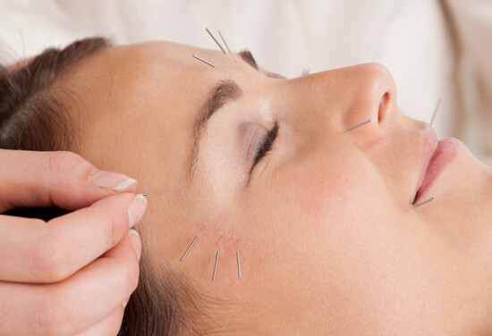 cosmetic acupuncture bangalow