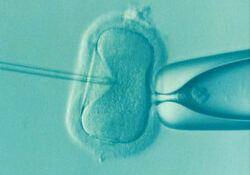 improve your ivf cycle
